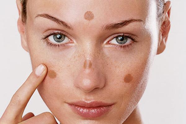 Nam da co phai la benh khong 1 - Acid Citric là hoạt chất gì trong mỹ phẩm? Acid Citric có tác dụng gì trong quy trình skincare da mặt?