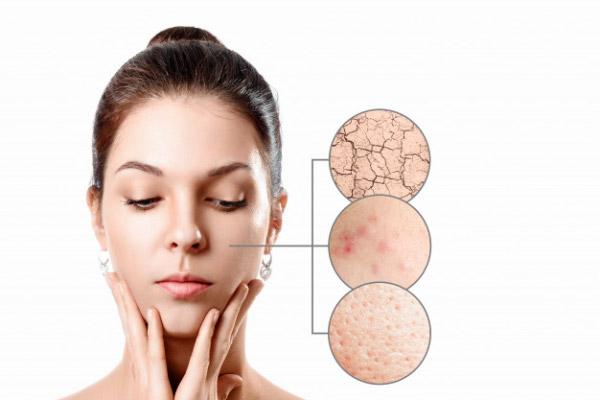 Phan biet cac loai da - Dưỡng ẩm da là gì? Các bước dưỡng ẩm chuẩn theo từng loại da