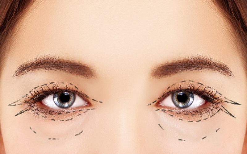 cat mi gia bao nhieu tien - Phẫu thuật cắt mí mắt giá bao nhiêu?