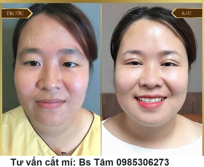 img 60a73152dfe64 - Phẫu thuật cắt mí mắt giá bao nhiêu?