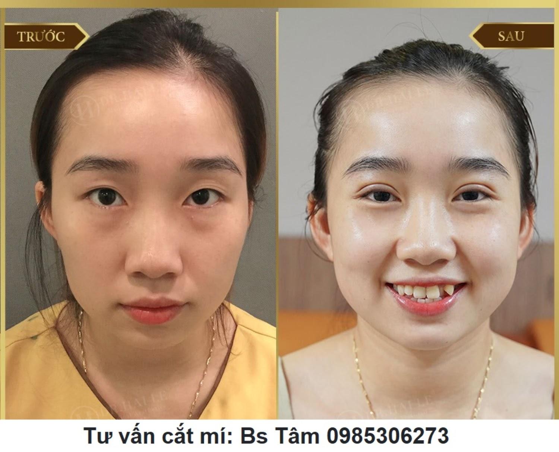 img 60a731536c9d0 - Phẫu thuật cắt mí mắt giá bao nhiêu?